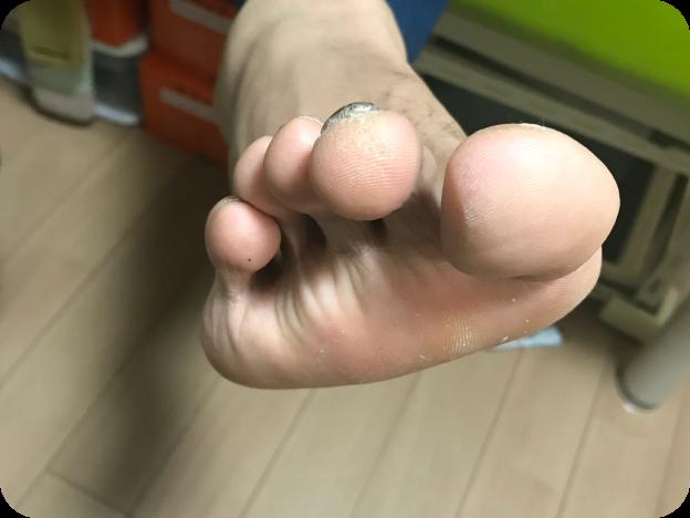 足趾の変形、浮き指