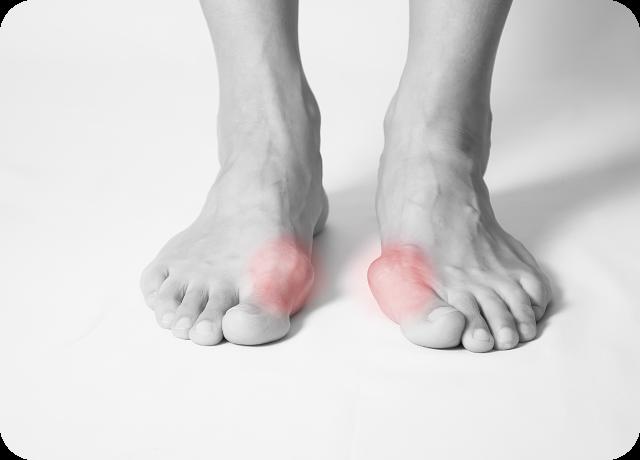 外反母趾や足のトラブルの改善や予防策など当院にお任せください。