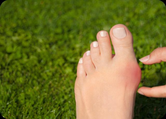 足に問題を抱える方への専門外来